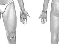 Лечение Варикоза - Флебология в Сумах